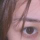 时间越久感觉双眼皮看起来越自然了,身边很多朋友也都夸我双眼皮做的不错。现在只有出去玩的时候我才会把自...