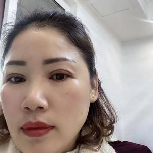 田雯双眼皮修复术后40天第2页图