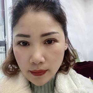 田雯双眼皮修复术后40天第1页图