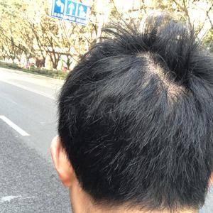 疤痕植发,远离自卑