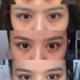 手术前两天热敷 口服消炎药 第三天开始热敷 可以用蒸汽眼罩和鸡蛋 平时多练习睁眼闭眼有利于消肿和形状自然...