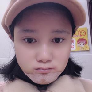 韩式生科假体植下巴