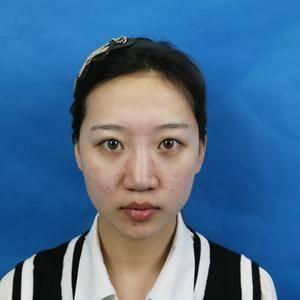 安徽合肥韩美整形外科医院——双眼皮