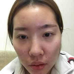 M唇整形手术