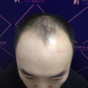 发际线后移怎么办?植发吧