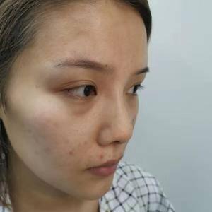 【GY广运整形】肋骨鼻内眼角术后
