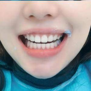 安徽合肥韩美整形外科医院——洁牙