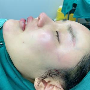Delicious girprp加纳米脂肪填充全脸手术当天第1页图