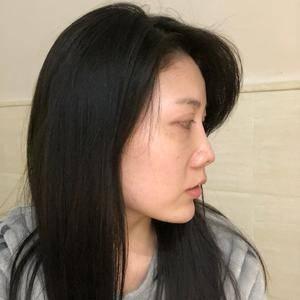 鼻部整形-鼻综合