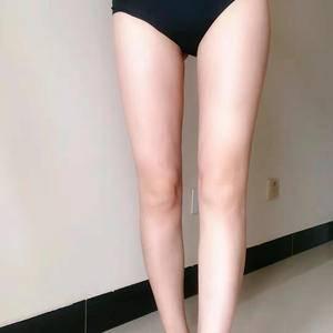我的腿型矫正日记