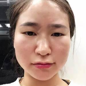 韩式眼综合