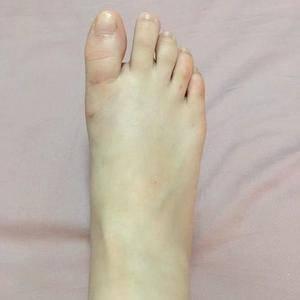 微创大脚骨手术