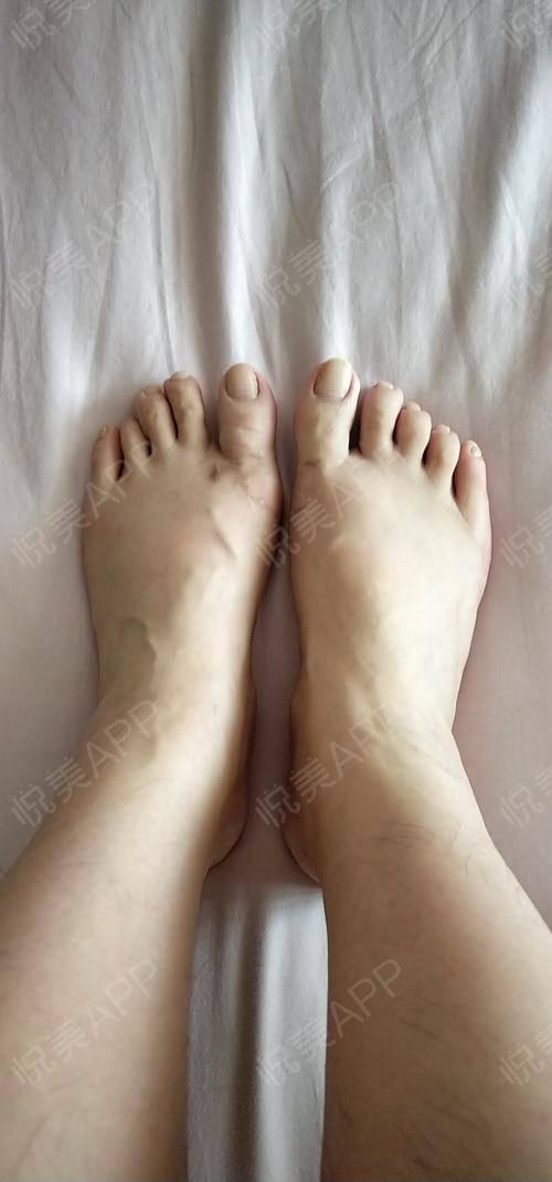 其实现在想想没做手术之前的我,脚都歪成那个样子我都没有早点做,哎,真的是抽出了天际了。我觉得我算是大脚骨做完之后恢复的比...