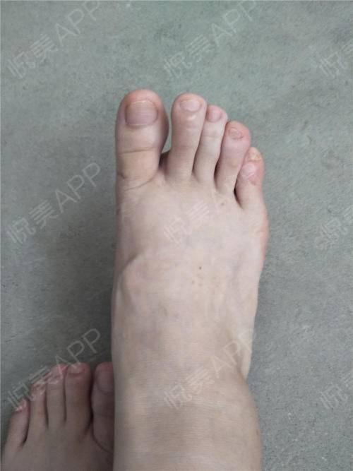 胖胖的小脚已经没有往日的大骨头了,终于是可以穿任何的鞋来衬托我的美了。现在真真正正的松了口气,年纪大了也可以美美的享受自...