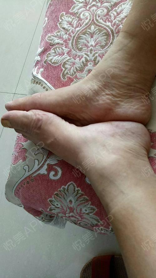 脚趾畸形其实看似不是一种病,但是真的小事情会困扰你一辈子,还好我治疗了,当做了手术的那一刻我觉得这辈子都不会害怕任何尝试...