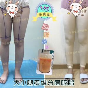 【每日案例分析】——大腿吸脂