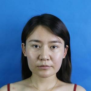 安徽韩美整形下颌角