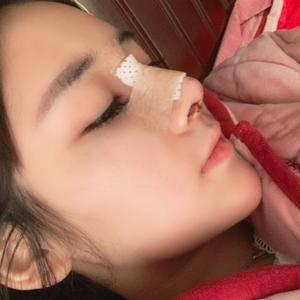 悦Mer_516702耳软骨隆鼻术后3天第2页图