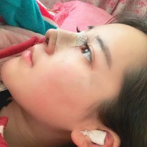 悦Mer_516702耳软骨隆鼻术后3天第3页图