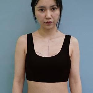 (14项专利)自体脂肪隆胸