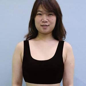 (14项国家专利)自体脂肪隆胸