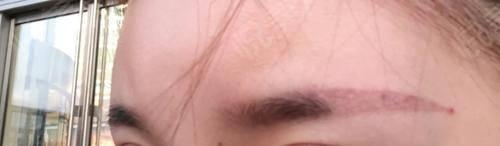 洗眉术后28天_洗纹绣&纹身术后28天_皮肤美容术后28天_妙不可言分享图片1