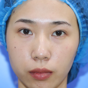 泉州双眼皮修复