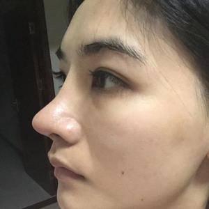 网红鼻修复