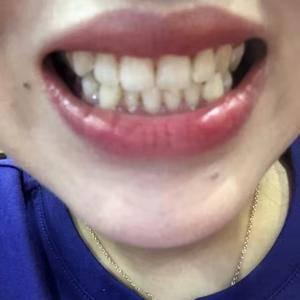 我的美白牙齿