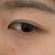 我眼袋不是特别明显,黑眼圈比较重,做完了没有肿,第二天睡醒也没有肿,就是黑眼圈看着更黑了,估计是有点...