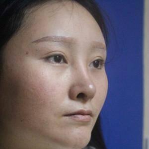 鼻综合隆鼻