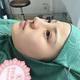 【南京克拉美鼻修复】鼻子刚做完的时候就感觉很假,正面看很明显可以看到假体的形状,测,侧面就更惨了,我...