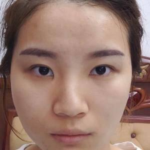 安徽韩美整形隆鼻