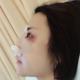 【南京华韩奇致美容医院-鼻综合】鼻子有点疼,感觉整张脸都有点肿,不过这是正常现象,必须恢复期才刚刚开...