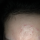 微针闭口痘痘没什么改善,也不是我预订的医生操作,我怀疑有没有医师执业资格!左眼角还因为操作不当留个黑...