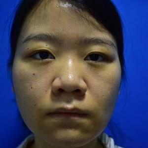 南雅鼻综合