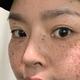 #第1篇日记#今天给各位女神们分享下我的祛斑换肤心路历程黑历史盲目祛斑经历:我在初二的时候,家里人带我去...