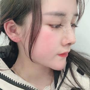 悦Mer_516702耳软骨隆鼻术后7天第3页图