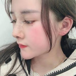 悦Mer_516702耳软骨隆鼻术后7天第2页图