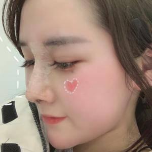 悦Mer_516702耳软骨隆鼻术后7天第1页图