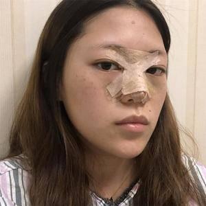 悦Mer_112705鼻综合术后分享术后5天第3页图