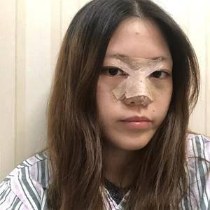 悦Mer_112705鼻综合术后分享术后5天第2页图