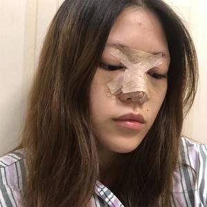 悦Mer_112705鼻综合术后分享术后5天第1页图