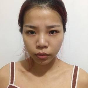 青山峪广州健丽不开刀去眼袋术后1天第3页图