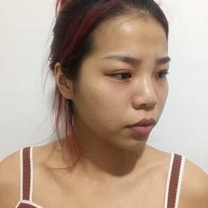 青山峪广州健丽不开刀去眼袋术后1天第1页图