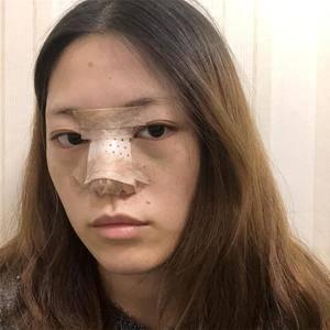 悦Mer_112705鼻综合术后分享术后7天第2页图