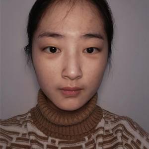 广州健丽不开刀去眼袋