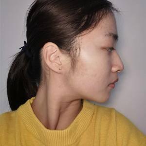 lucien风铃广州健丽不开刀去眼袋术后1天第3页图