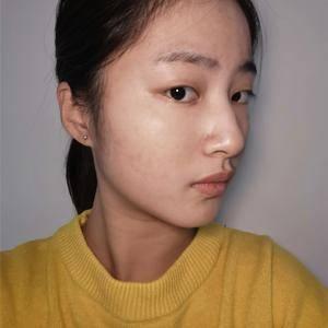 lucien风铃广州健丽不开刀去眼袋术后1天第2页图