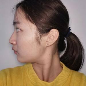 lucien风铃广州健丽不开刀去眼袋术后1天第1页图